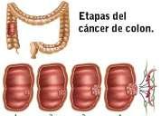 Como combatir el cancer de colon naturalmente