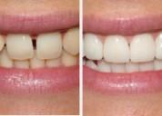 Dentaduras postizas,se  confeccionan dentaduras postizas en la comodidad de su hogar ,para personas