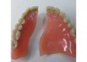 Se confeccioonan dentaduras postizas en la comodid