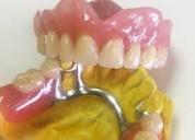 Dentaduras postizas al momento en la comodidad