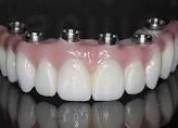 Se confeccionan protesis dentales para personas