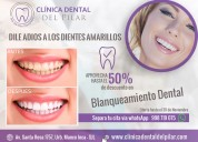 Blanqueamiento dental en sjl – clínica dental del