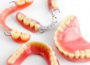 Protesis dentales en general