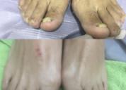 Podología láser tratamiento integral del pie